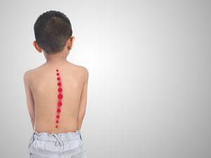Physiotherapeuten (w/m/d) für den Bereich Skoliose Therapie in Teil- oder Vollzeit gesucht!